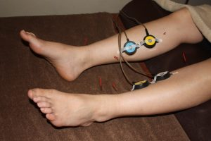 ヒステリー球に対する下肢への鍼灸治療
