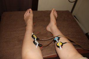 多嚢胞性卵巣症候群の下肢への鍼灸治療