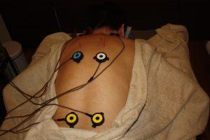 視神経萎縮の頸肩鍼灸治療