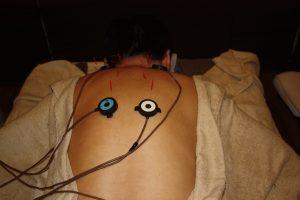 倦怠感のうつ伏せ鍼灸治療