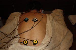 男性不妊のうつ伏せ鍼灸治療