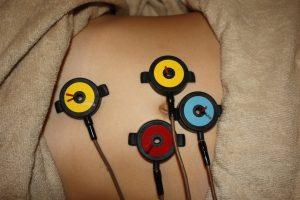 顔面神経麻痺の自律神経調整鍼灸
