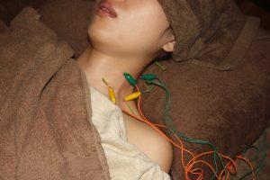 胸郭出口症候群の鍼治療