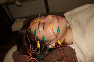 眼の痛みに対する鍼通電治療