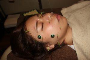 目のかゆみの鍼灸治療