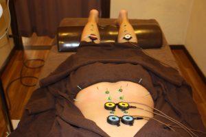 背部の自律神経調整鍼灸治療y