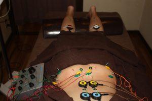 夜間頻尿の鍼灸治療