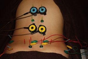 月経困難の背部への鍼灸治療