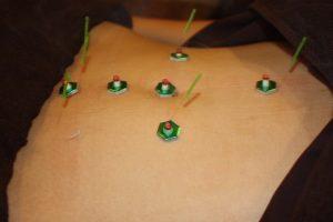 黄体機能不全の鍼灸治療