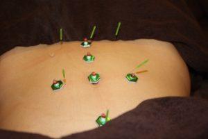 月経不順の仰向け鍼灸治療