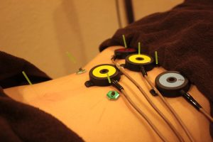 慢性疲労症候群の仰向け鍼灸治療