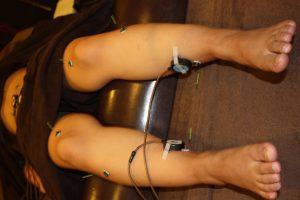 アトピー性皮膚炎の下肢へのお灸治療