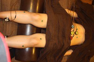 胃酸過多の下肢へのお灸治療