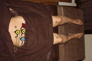 鼻づまり対する自律神経を整える鍼灸治療