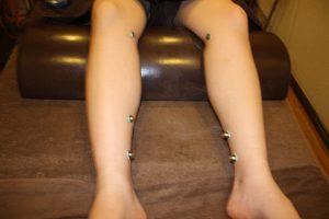 倦怠感の下肢へのお灸治療