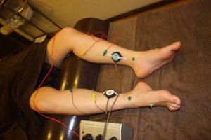 黄体機能不全の下肢への冷え治療