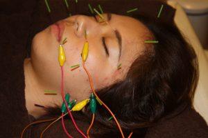 歯痛の鍼通電治療