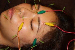 網膜色素変性症の鍼通電治療