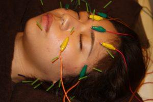 斜視の鍼通電治療