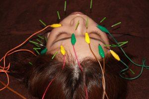 シェーグレン症候群の鍼灸治療