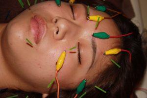 トロサ・ハント症候群の鍼通電治療