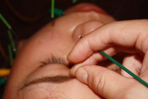 目の症状に対するお灸治療