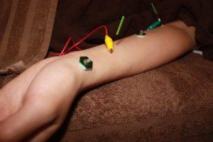 母指CM関節症の鍼灸治療