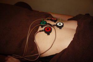 交感性眼炎の自律神経調整鍼灸