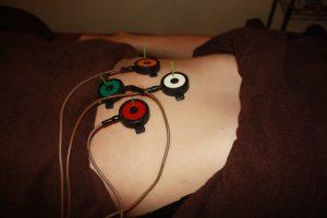バセドウ病自律神経調整鍼灸治療