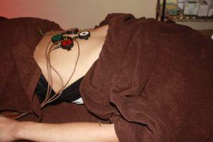 夏バテの自律神経調整治療