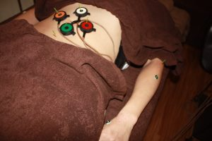 ストレートネックの自律神経調整鍼灸治療
