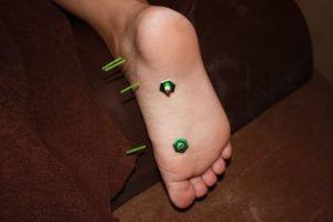 足底部への痛みのはり灸治療