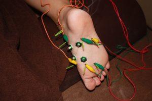 足底筋膜炎の鍼通電治療