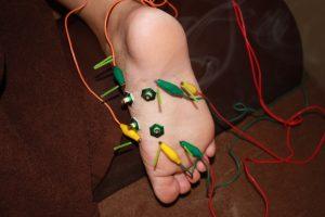 足底部への鍼通電治療