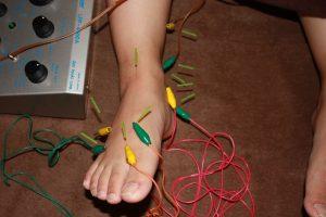 モートン病の鍼通電治療