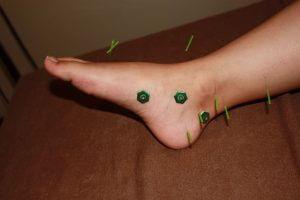末端冷え性の足への鍼灸治療