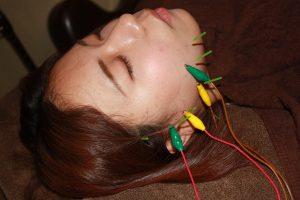 口内炎の鍼灸治療