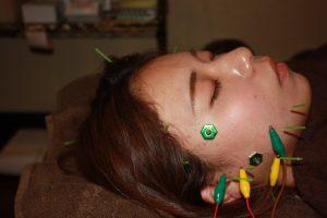 歯ぎしりの鍼灸治療