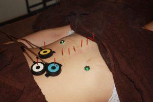 産後うつ病の自律神経調整鍼灸