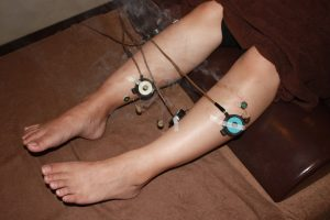 半月板損傷の下肢への鍼灸治療