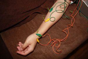 橈骨神経麻痺の鍼通電治療