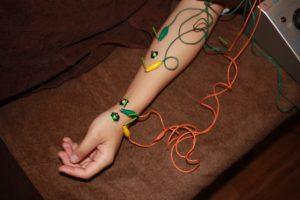 ばね指に対する鍼灸治療