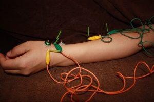 ドゥケルバン病の鍼治療