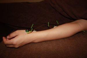寒冷蕁麻疹に対する肺経への鍼灸治療