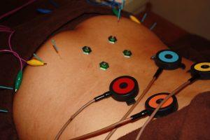 タナ障害の腰部への鍼灸治療