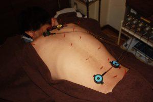 息切れに対する鍼灸治療