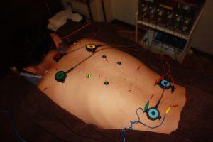 ドゥケルバン病のうつ伏せ鍼灸治療