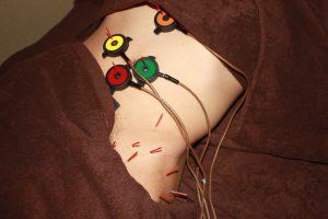 変形性股関節症の鍼灸治療