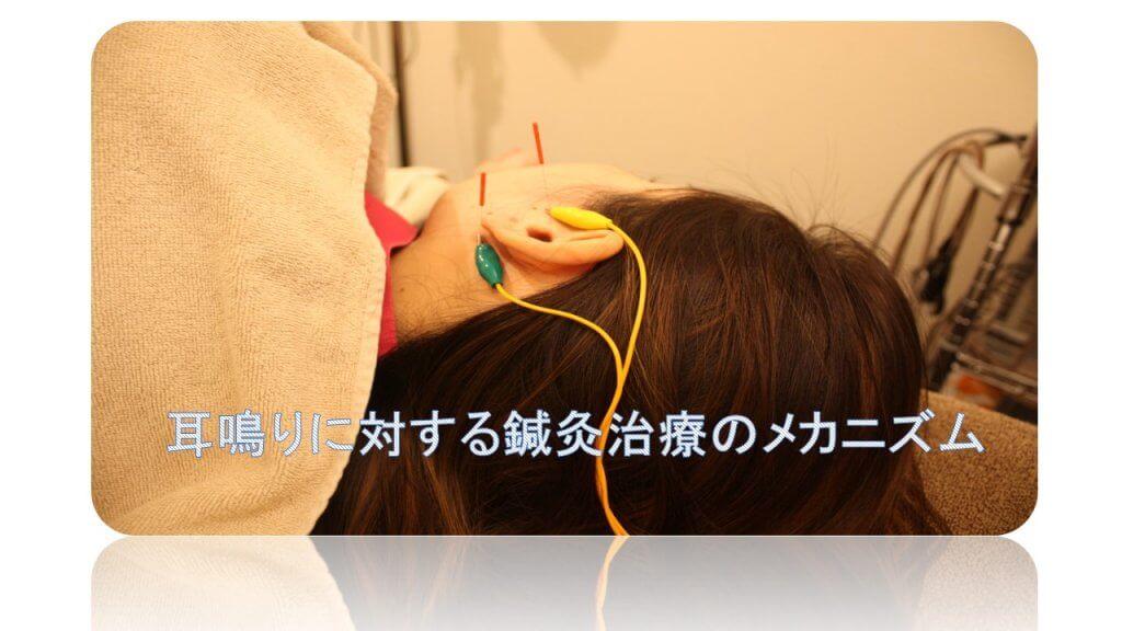 耳鳴りの鍼治療