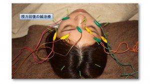 視力回復の鍼治療